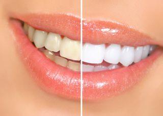 Избелване на зъби за красива усмивка