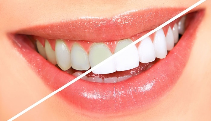 Естетична стоматология - малки корекции за красива усмивка